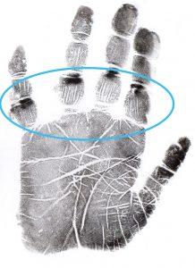 jake 12 fingers