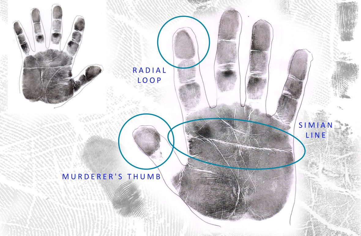 THE MOST CHALLENGING HAND: Simian Lines, Murderer's Thumbs & Radial loops The-Most-Challenging-Hand-1180x770