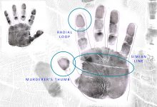 THE MOST CHALLENGING HAND: Simian Lines, Murderer's Thumbs & Radial loops